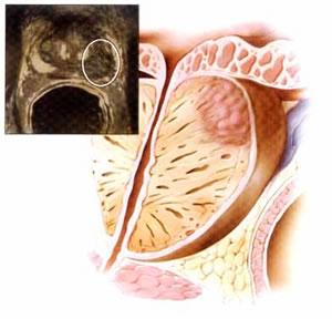 Симптомы при воспалении аденомы предстательной железы